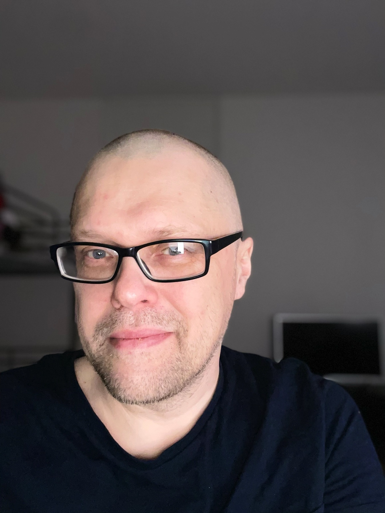 haircut that is neither great nor terrible (no hair at all)